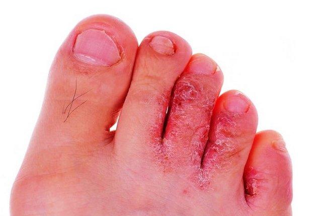 Крем способен избавить от сухости кожи ног
