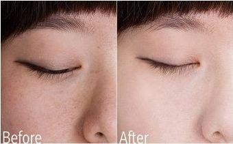 Эффект до и после применения отбеливающего крема