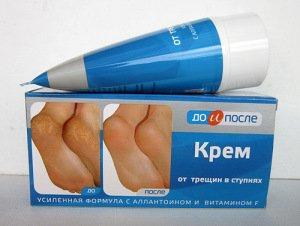 Крем до и после от трещин на ногах