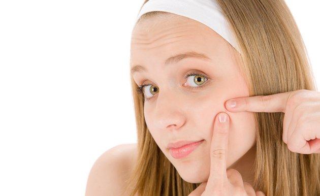 Крем от пятен на лице после прыщей поможет устранить пигментацию вызванную высыпанием