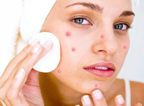 Одна из причин появления прыщей - недостаточная очистка кожи