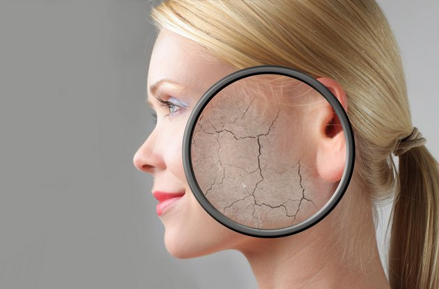 Шелушения на лице могут возникать по многим причинам