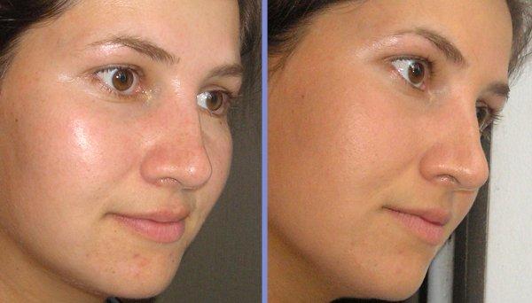 Эффект от кремов для жирной кожи лица