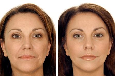 Действие крема для увядающей кожи лица