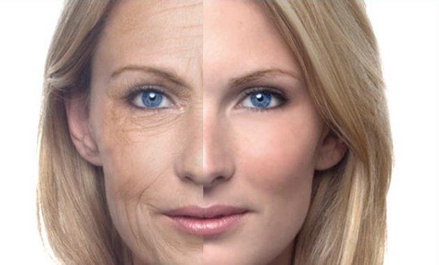 Основная причина увядания кожи - ее старение