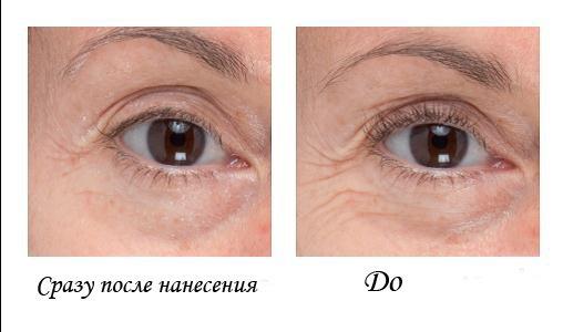 Средство от синяков под глазами лучший способ устранения