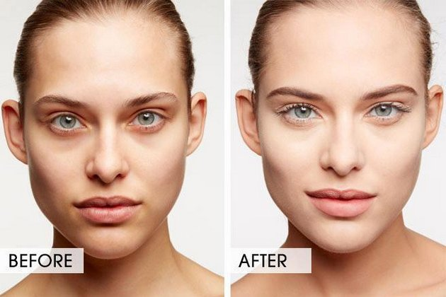 До и после применения крема от синяков