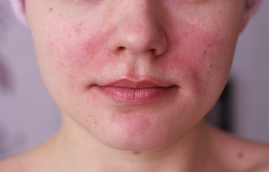 аллергия краснота под глазами