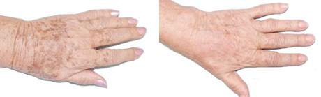 результат отбеливания рук с помощью крема