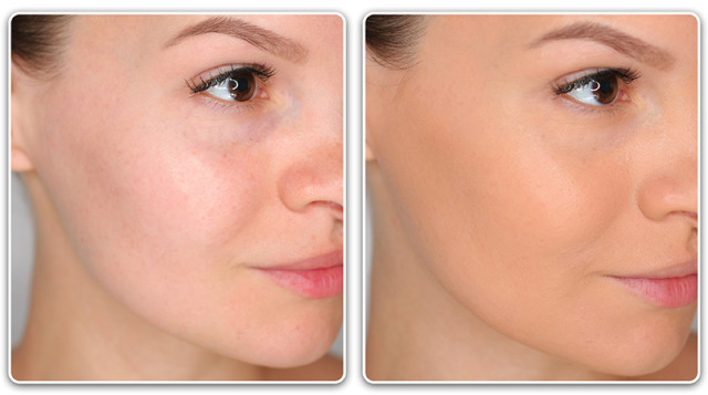 Матирующий тональный крем до и после