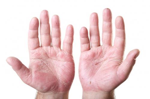 Причин появления трещин на руках может быть много