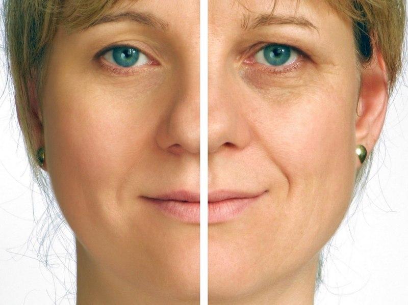 До и после применения крема филлера