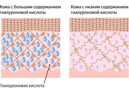 Недостаток филлеров приводит к дряблости кожи