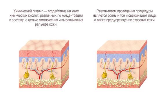 Химический пилинг это разновидность поверхностного пилинга лица
