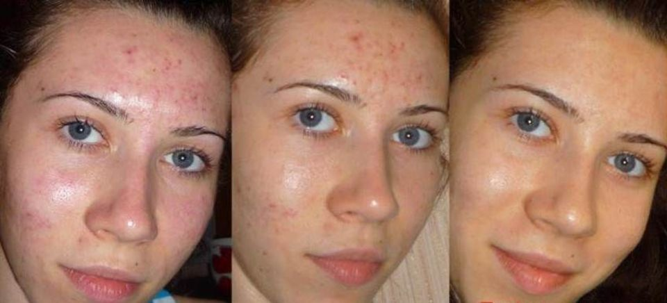Глубокий пилинг лица в домашних условиях фото до и после