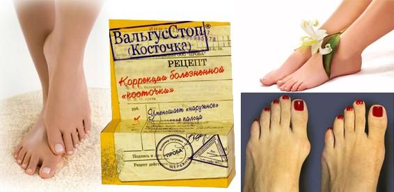 Средство от косточки на большом пальце ноги