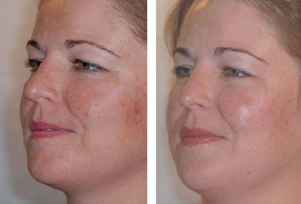 Срединный пилинг лица фото до и после