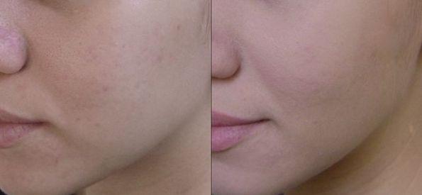 Крем под макияж выравнивает тон кожи