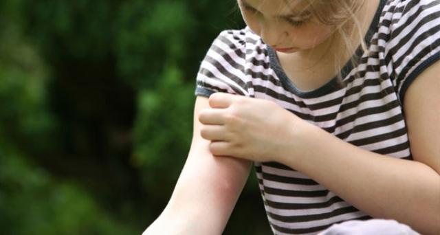 Симптомы укусов комаров