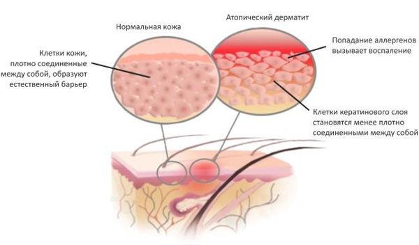 krem-ot-dermatita-na-litse-i-rukah-usranyaet-vospalenie