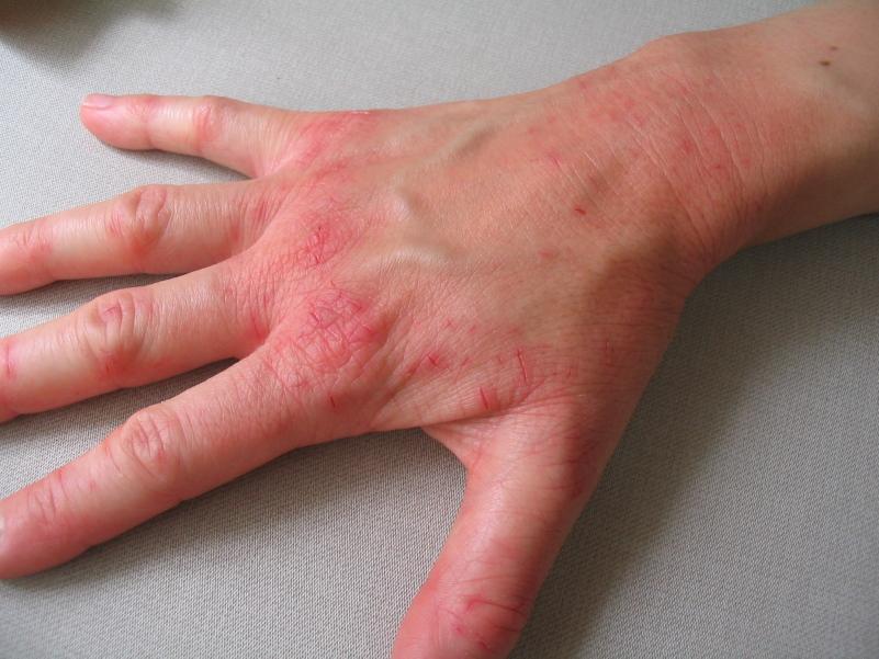 simptomyi-dermatita